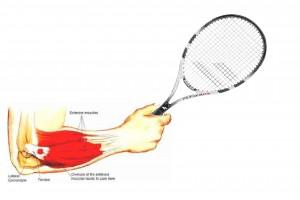 tennis elbow.2