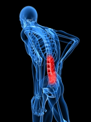 Spinal Stenosis | Norman Marcus Pain Institute
